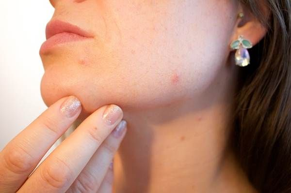 Causes and #natural #treatments for red spots on #face.