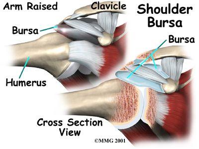 Reverse Shoulder Arthroplasty | Orthopedics & Sports Medicine | Houston Methodist