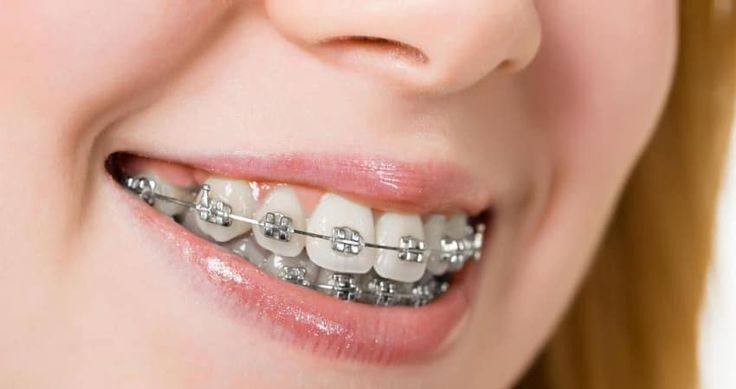 Today, we will be looking at the perfect braces for different types of malocclusions. The question to be answered really is which braces do you need? Which are the perfect braces for you? How do you determine the right braces for you? Well here is a quick guide on the available types of braces and their suitability