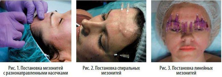 Подтяжка мезонитями для устранения морщин на лбу