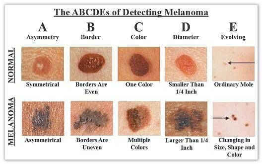 Do You Know The Difference Between An Ordinary And Cancerous Mole? This Chart Could Save Your Life [STORY]