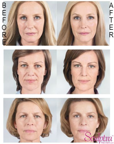 #Sculptra helps correct shallow to deep facial wrinkles and folds that appear with aging by replacing lost collagen.