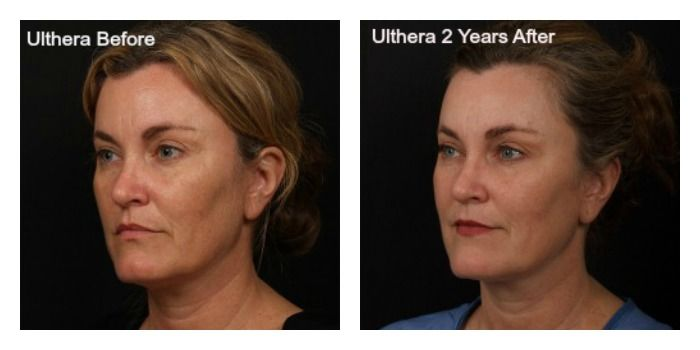 They Re Here My Ultherapy Before And After Photos Blog