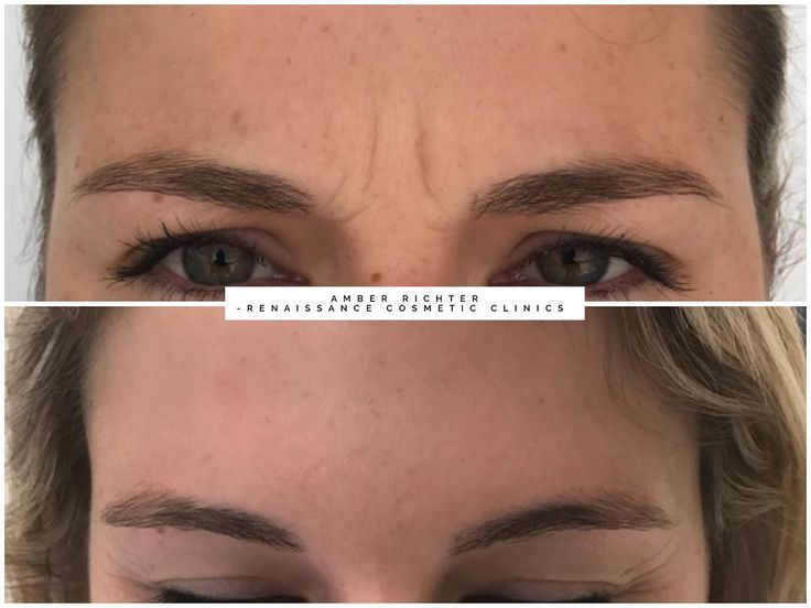 Targeting the frown with anti wrinkle injections to reduce dynamic lines. Treatm...