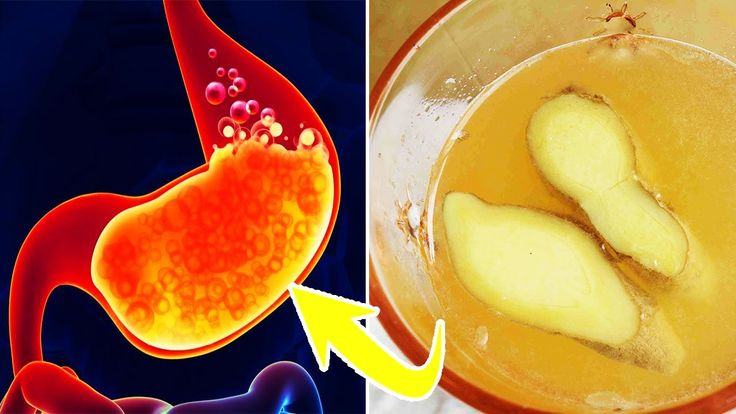 How To Get Rid Of Heartburn Fast   How To Stop Heartburn   How To Soothe Heartburn https://youtu.be/Sqg3vbS3Ul0