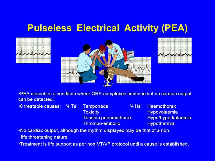 pulseless electrical activity  pea  pea describes a co
