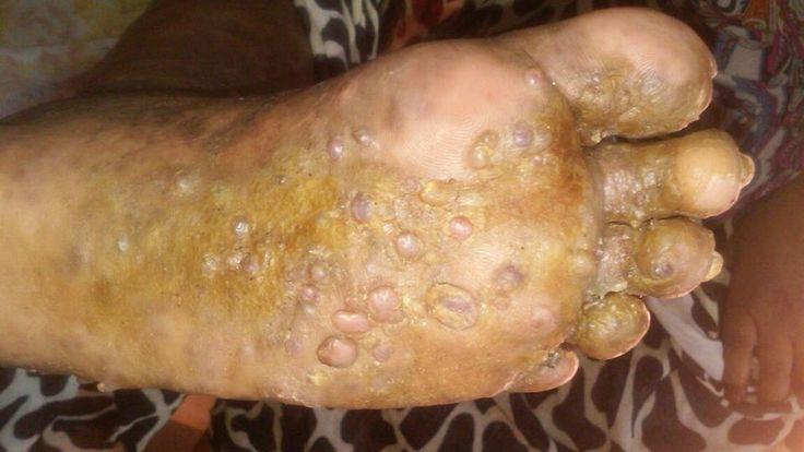 Foot blisters   http://www.drfoot.co.uk