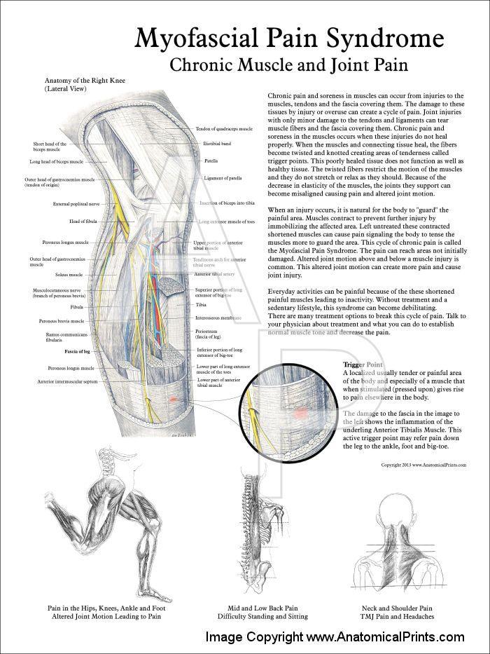 fibromyalgia trigger point therapy pdf