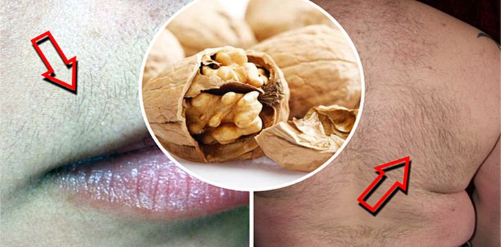 Esta vieja receta te ayudara a eliminar esos humillantes pelo que tienes en todo tu rostro y cuerpo. Después de un par de meses utilizando esta