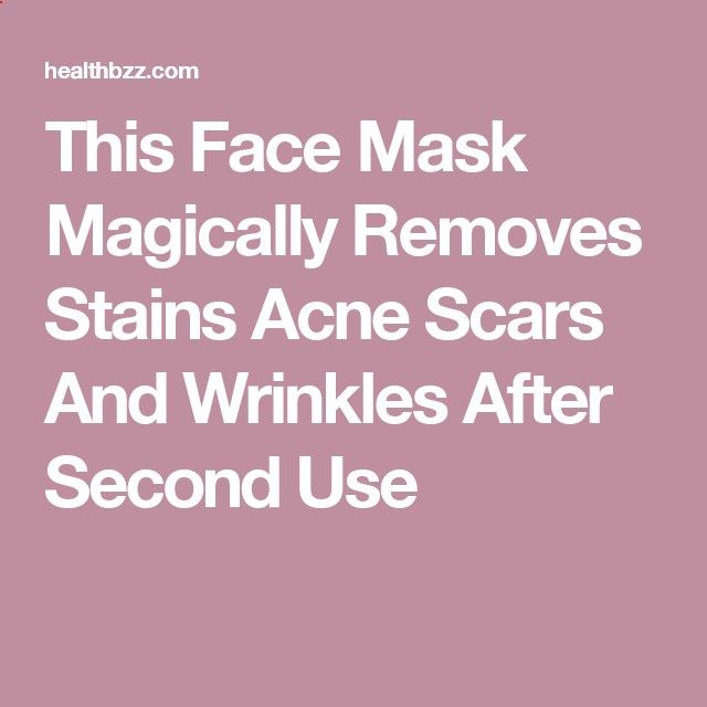 Creams to Remove Face Stains - This Face Mask Magically Removes Stains Acne Scars And Wrinkles After Second Use - Homemade creams to remove face stains