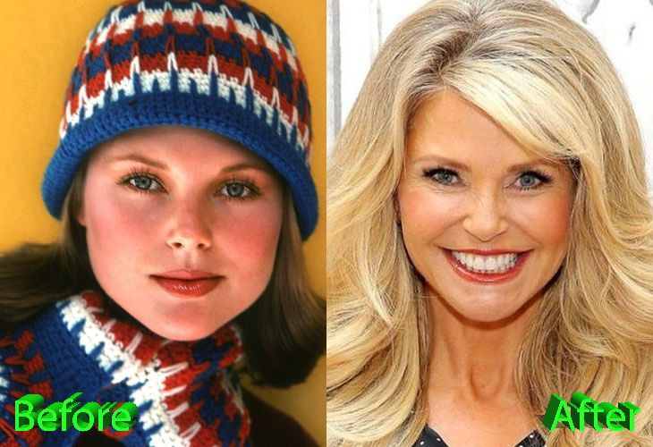 Christie Brinkley Plastic Surgery : The Lovely Fashion Princess