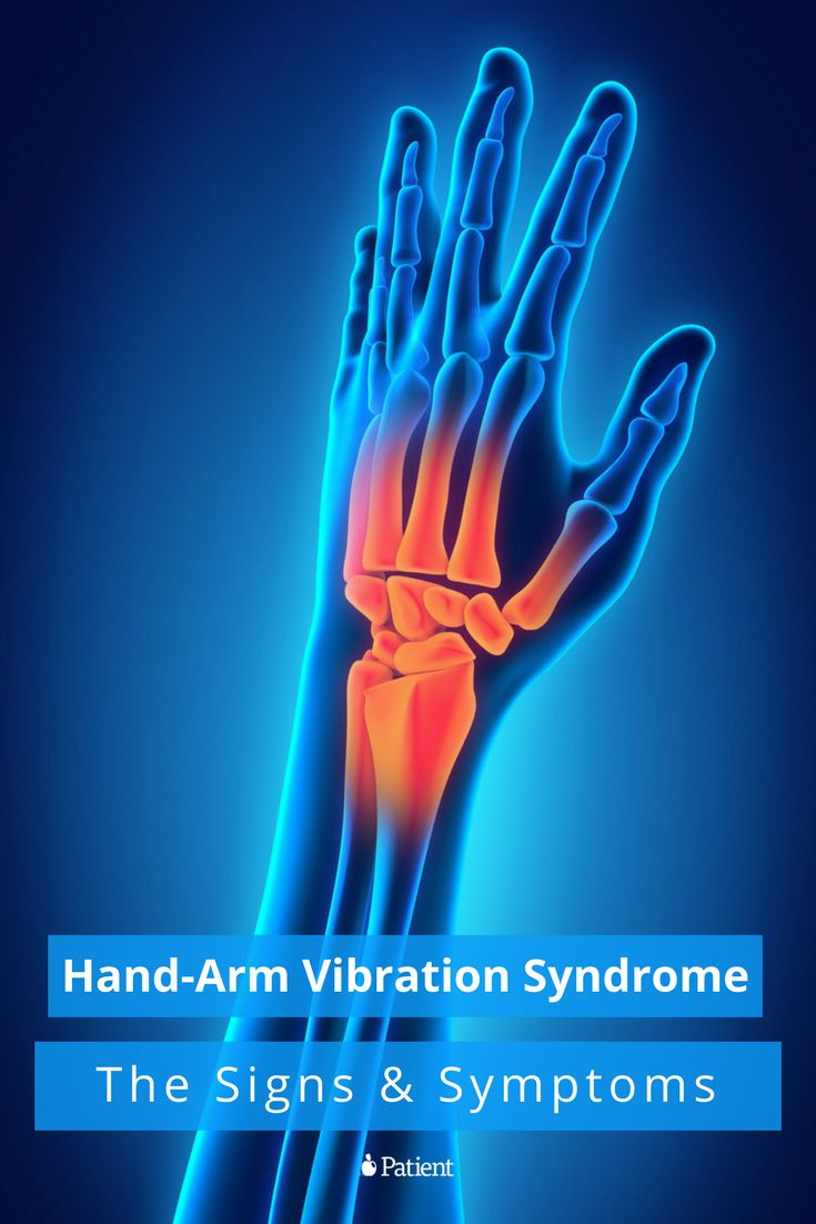 Hand-arm vibration syndrome causes changes in sensory perception which can lead to permanent numbness of fingers, muscle weakness and, in some cases, bouts of white finger. Learn more:
