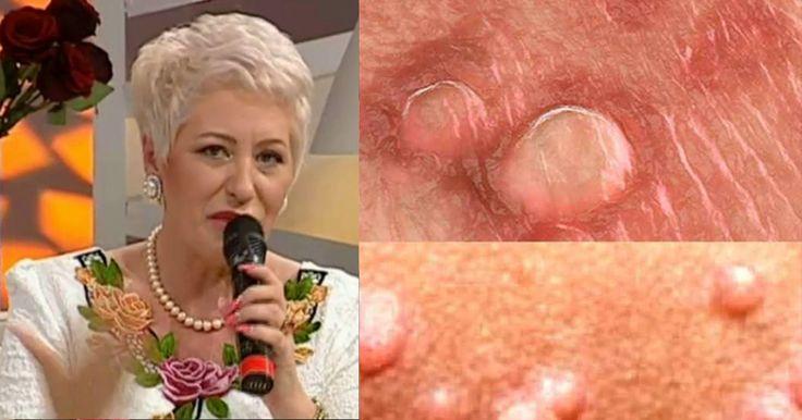 """Bioenergoterapeutul Lidia Fecioru a găsit un leac pentru persoanele care suferă de virusul papiloma uman, o afecțiune care poate afecta organele intime. Lidia Fecioru, leac pentru paraziți """"Am să vă spun un leac pentru paraziții din corp, pentru paraziții intestinali. Toți avem în corp, mai m"""