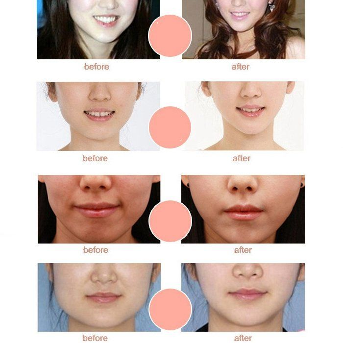 V Shape Slimming Mask Face Hanging Anti-wrinkle Chin Cheek Lift Up Women  Girls