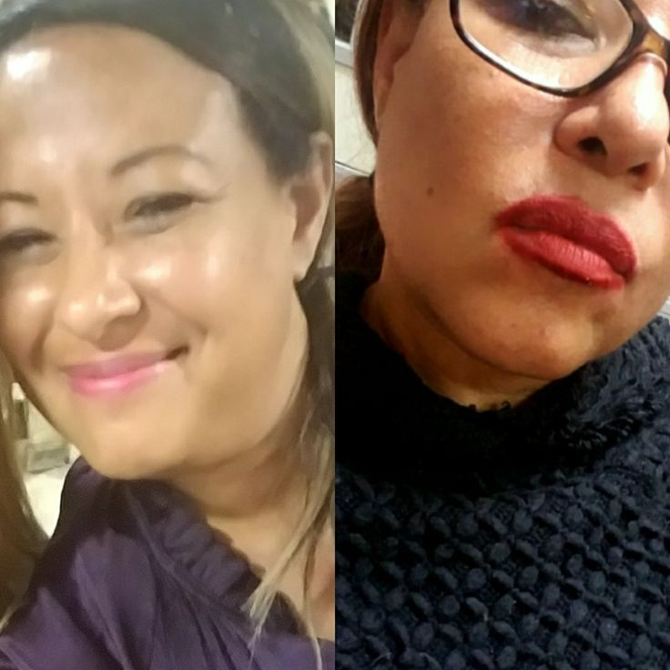 Microcurrent facial by Holly at  Burke Williams in Torrance..before and after under jaw skin tightening..Tell her Evy sent you. I'm so pleased with the results.