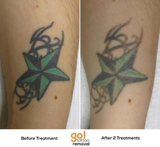 946 best tattoo removal in progress images on pinterest for How long does it take for a tattoo to fade