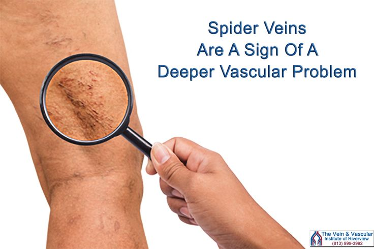 Our vascular surgeons recommend that people suffering from spider veins have a vascular ultrasound on the legs to discover if there are any deep veins in the legs that are malfunctioning and need to be treated.  Find out more at: https://www.veinandvascularinstituteofriverview.com/service/spider-veins-treatment-riverview-fl/  #SclerotherapyRiverviewFL #SpiderVeinRemovalRiverviewFL #SpiderVeinTreatmentRiverviewFL #GetRidOfSpiderVeinsInRiverviewFL #TreatmentForSpiderVeinsRiverviewFL