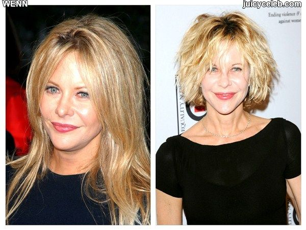 30 Heinous Celebrity Plastic Surgery Fails - The Hollywood ...