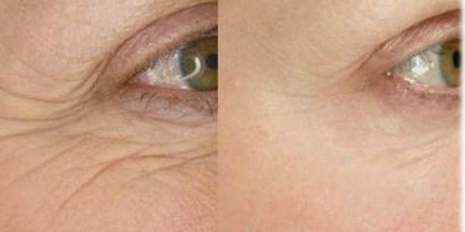Home Remedies for Wrinkles Removal