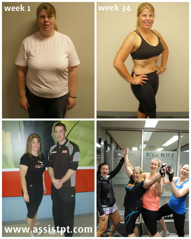 WINNER of the 2010 Metabolic Precision Transformation Challenge - Karen lost 25kgs of body fat & 150cm in 34 weeks, now pain free & no need for the aid of a walking stick to get about, she also became the first National Lifestyle Champion of the Metabolic Precision Transformation Challenge! http://www.assistpt.com/testimonial/karen