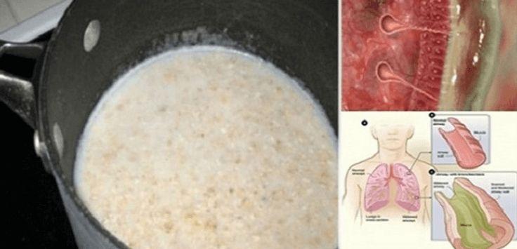 Tento jednoduchý sirup čistí hleny z plic a výrazně zvýší vaši imunitu