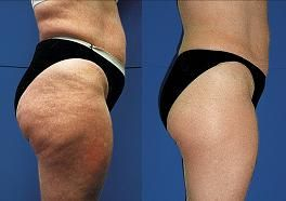 Cellulite be gone w/Endermologie