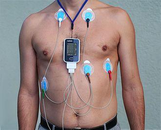 Holter monitor vs ZIO