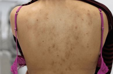 How to get rid of back pimples and scars
