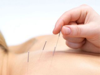 Acupuncture For Anxiety #acupunctureforanxiety #acupuncturetreatment