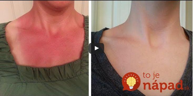 Spálenie od slnka je veľmi nepríjemné. Hoci to najskôr necítime, postupne sa začne objavovať výrazné začervenanie a nepríjemná bolesť. Pomoc prinesú 2 ingrediencie.