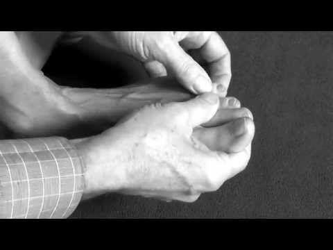Fußübungen für Vorfuß und Zehen, Fußtraining bei Hallux valgus, Spreizfuß, Hammerzeh, Krallenzeh - YouTube