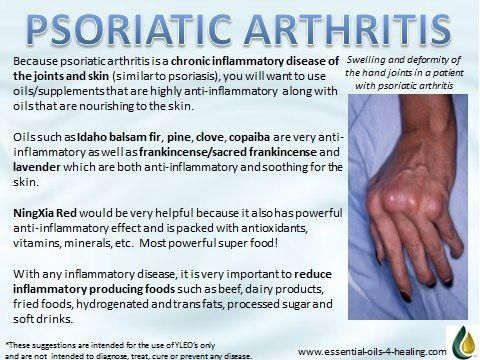 arthritis - For pain relief I use the lotion from this site: http://PainKickers.com/back-injuries/