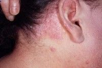 #Psoriasis of the Scalp The scalp may have fine dry scaly skin or have heavily crusted plaque areas. The plaque can flake off or peel off in crusted clumps. Sometimes psoriasis of the scalp is confused with #seborrheic dermatitis. In seborrheic dermatitis, the scales are greasy looking, not dry. #psoriasis, #Metaderm, #dryskin, #skin, #healthyskin, #skincare