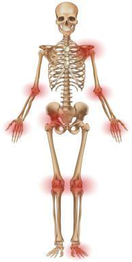 10 Best Ideas About Essential Oils Arthritis On Pinterest