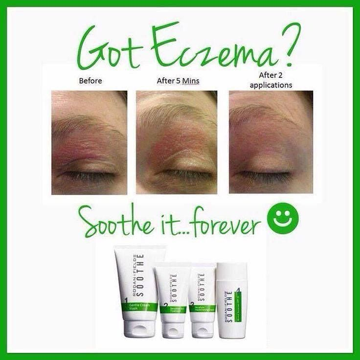 Have Eczema?? Look at these results!! Rodan Fields Soothe Regimen can help treat your sensitive skin forever!! With a 60 day money back guarantee why not give it a shot?? Contact me today and learn how to save 10% and get free shipping!! #rodanandfields #beautifulskin #premiumskincare #eczema #sensitiveskin #soothe by rodanandfieldsava