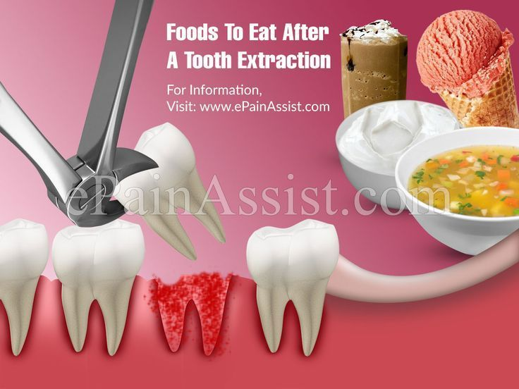 Foods To Eat After A Tooth Extraction Tooth Decay Food After Tooth Extraction Eating After Tooth Extraction Tooth Extraction Aftercare