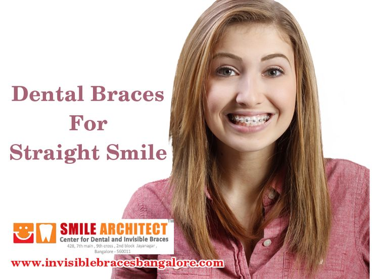 We provide you #dentalbraces treatment in #Bangalore. For know more : http://goo.gl/759vTb