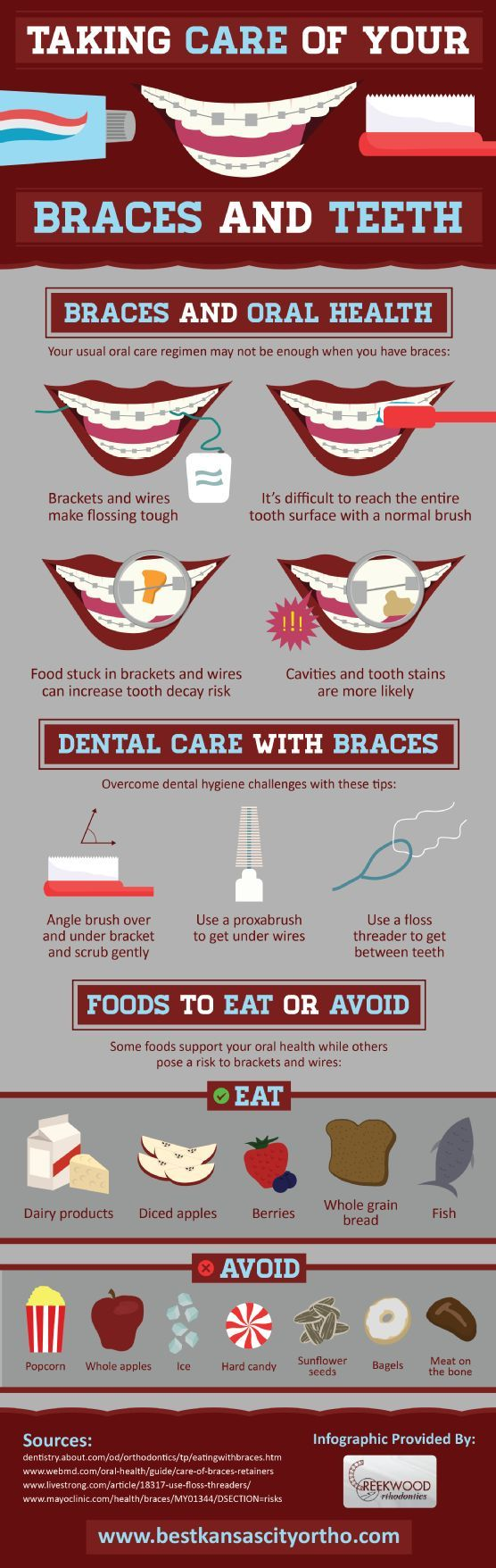 Do you have braces? Check out this infographic to learn how to care for your braces and your teeth!