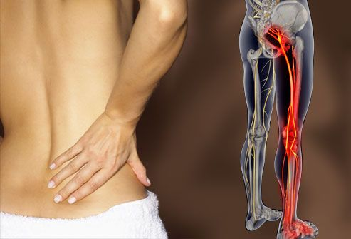 Symptoms of Sciatica  The most common symptom of sciatica is lower back pain that extends through the hip and buttock and down one leg. The pain usually affects only one leg and may get worse when you sit, cough, or sneeze. The leg may also feel numb, weak, or tingly at times. The symptoms of sciatica tend to appear suddenly and can last for days or weeks.