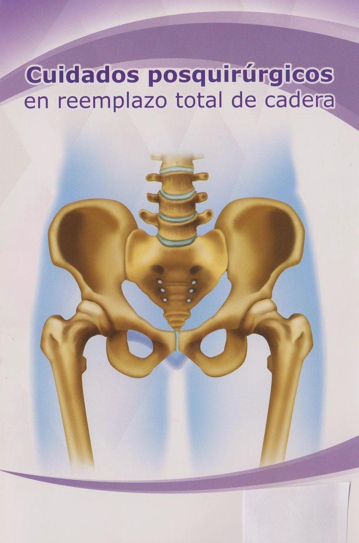 reemplazo de cadera cuidados terapeuticos