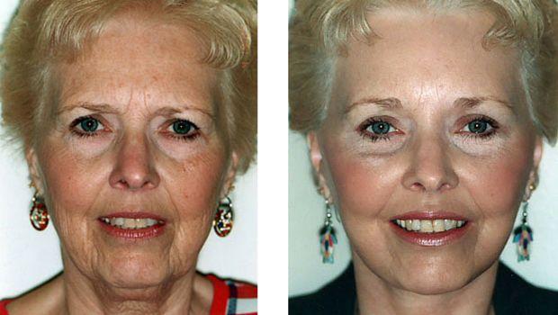 Total Wrinkle Miracle - Essential Skin Anti-Ageing