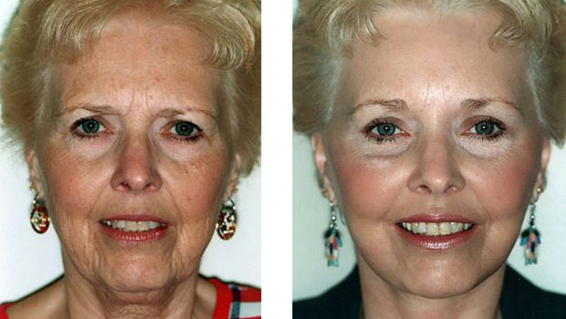 Dr. Oz & Team Discover Solution For Wrinkle Free Face – Makes 67 Year Divorced Grandma Look 35 Within 2 Minutes