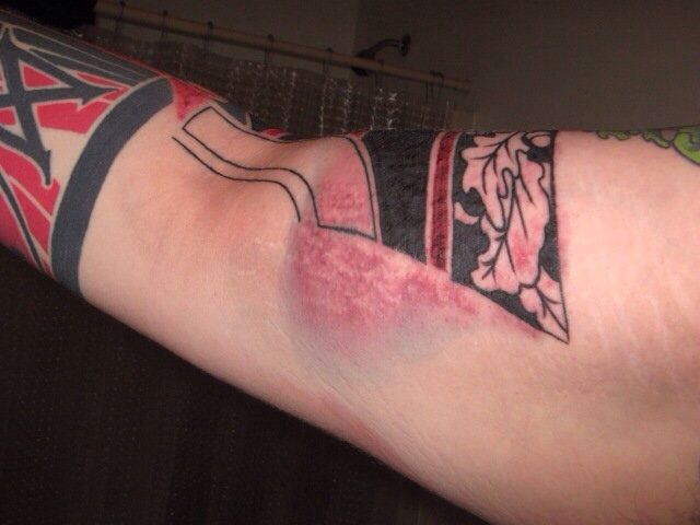 6 Steps How to Treat an Infected Tattoo - Take in Consideration