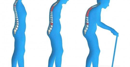 Οστεοπόρωση και εμμηνόπαυση - The Doctors
