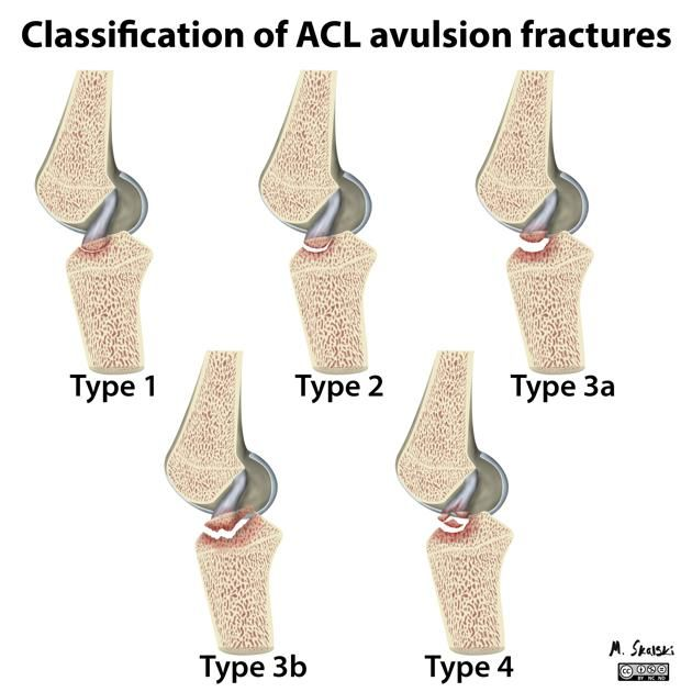 White E, Patel D, Matcuk G et-al. Cruciate ligament avulsion fractures: Anatomy, biomechanics, injury patterns, and approach to management. Emerg Radiol.;: 1-12. Emerg Radiol (full text) - doi:10.1007/s10140-013-1121-0
