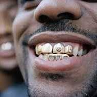 Silver crown teeth