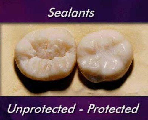 Los selladores dentales ayudan a proteger los dientes de los niños.