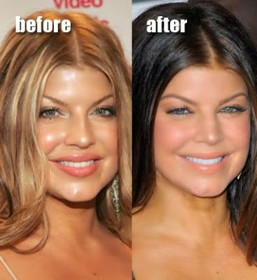 Fergie Plastic Surgery has become the issue of press discussion. You will find rumours about her Botox shots, plastic surgery, and additives. It is now easy-to see away the variations within her look and system