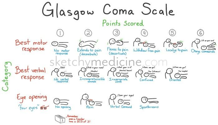 glasgow coma scale | The Glasgow Coma Scale is a scoring system used to evaluate someone ...Always consider a pt to be comatose if the Glasgow score is less than 8.