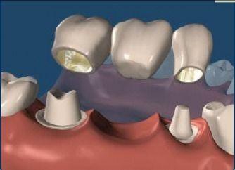 Il #ponte #dentale è un tipo di protesi usata principalmente per sostituire uno o più #denti rotti.